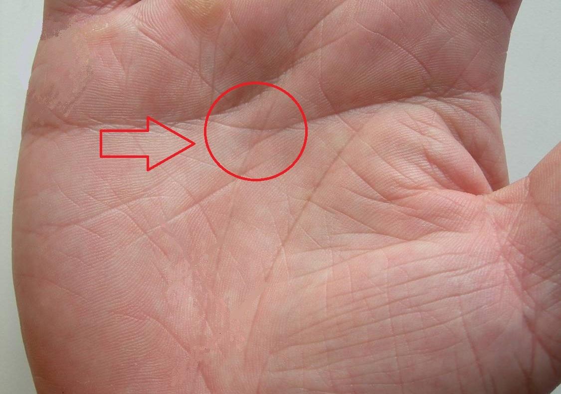 редкие линии на руке фото и значение диетолог скажет