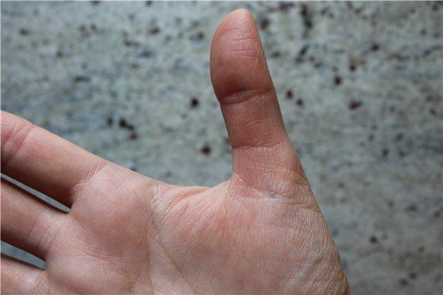 Описание линий на большом пальце