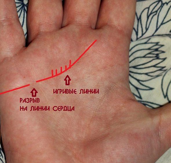 Как выглядит разрыв на линии сердца