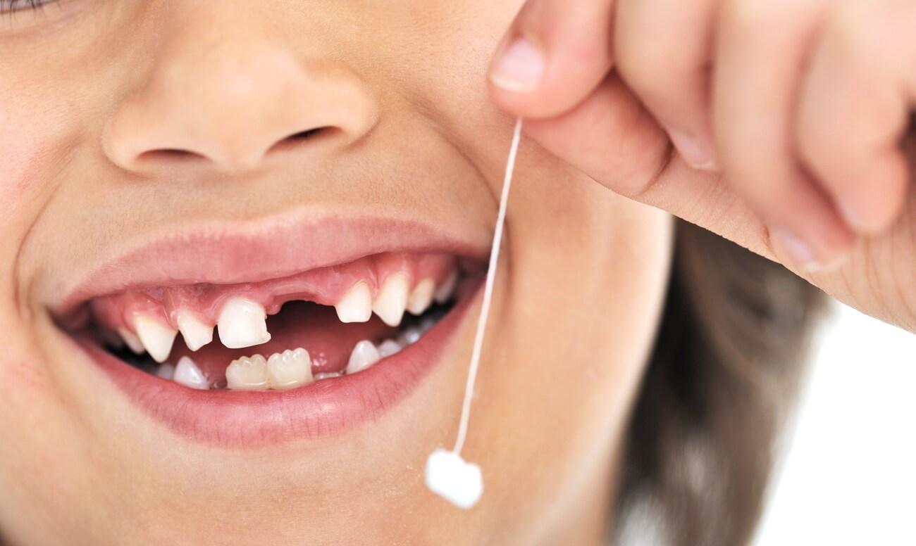 снится потеря зубов