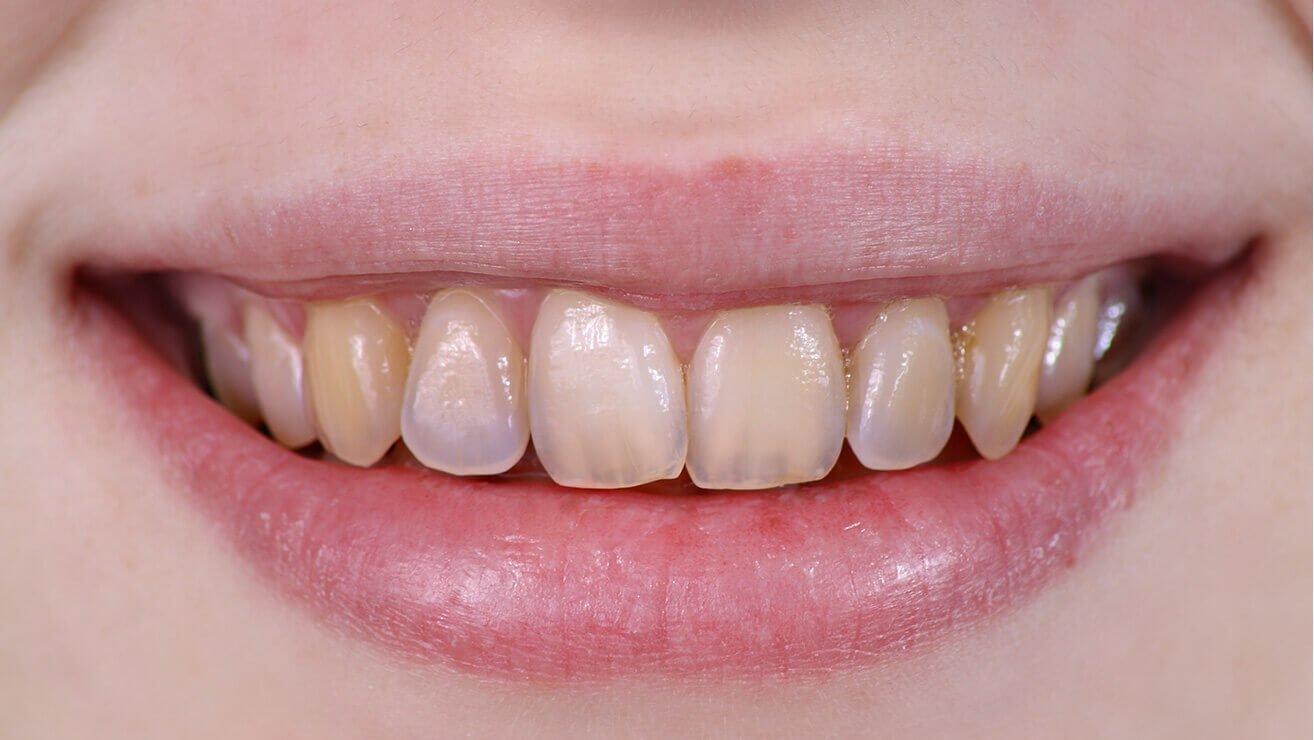 К чему снятся черные зубы