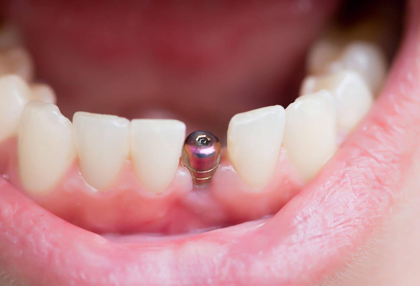 Крошение зубов в видении