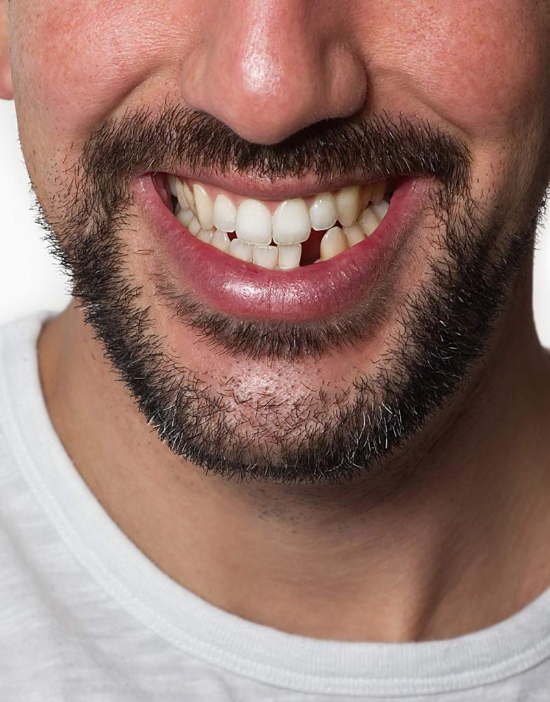 Снится выплевывать зубы