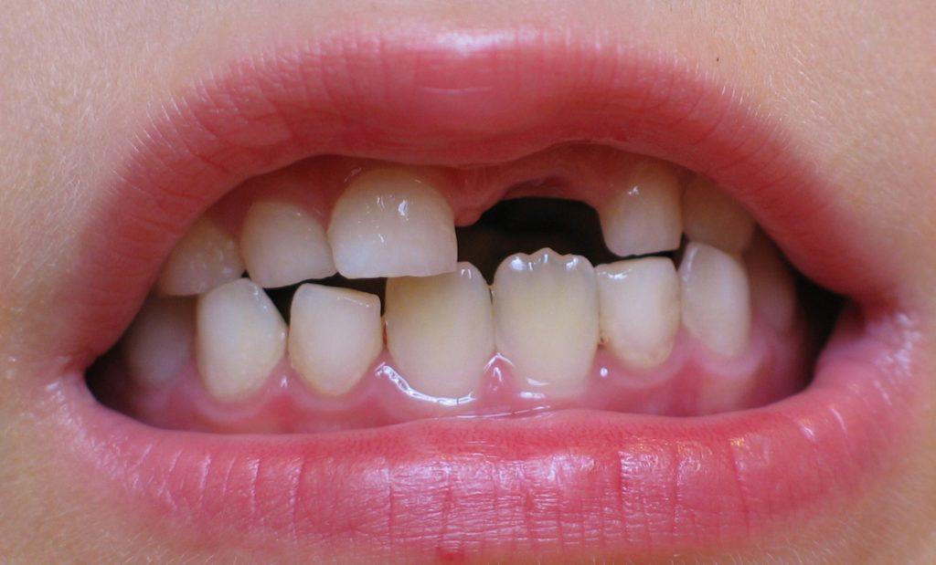 К чему снится выпадение зубов: сонник, с кровью, что означает потеря, толкование, много