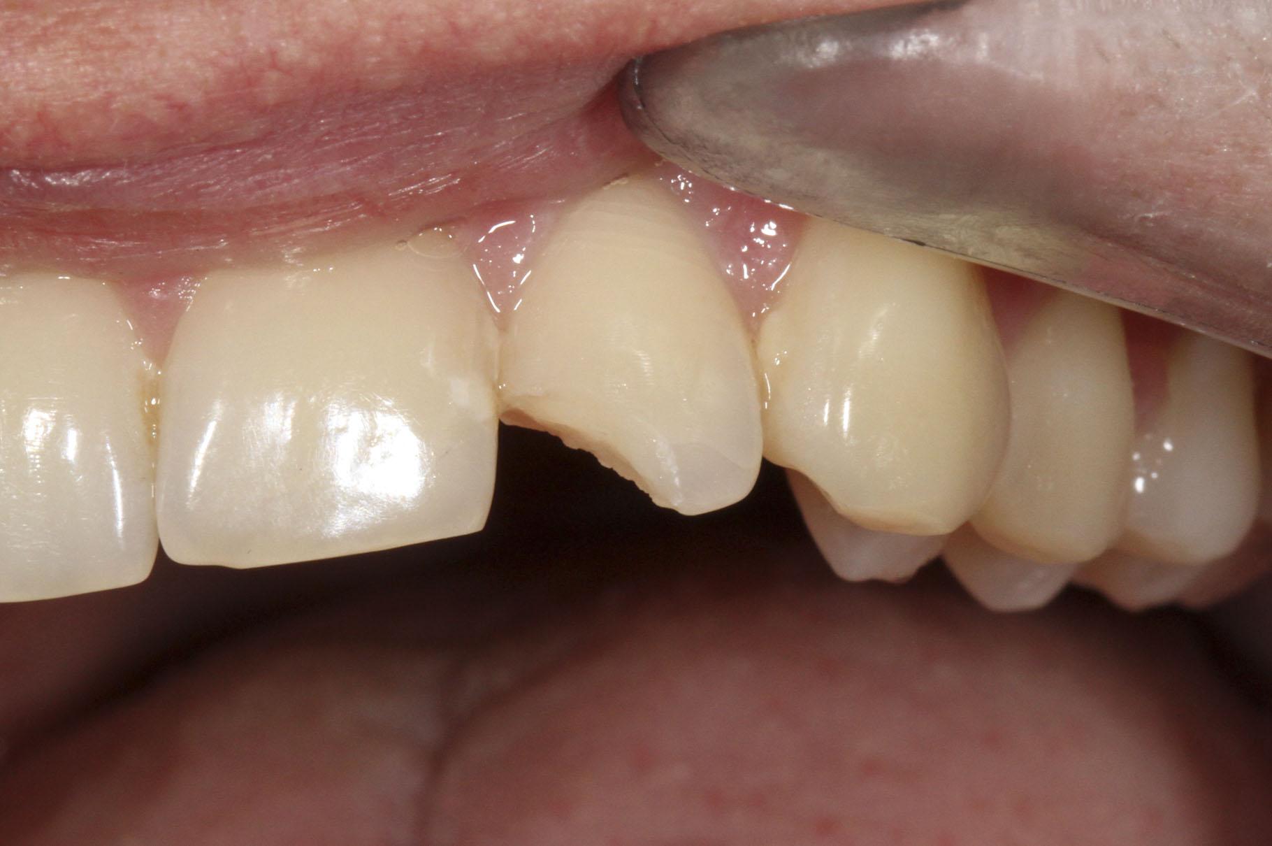 Сломался зуб