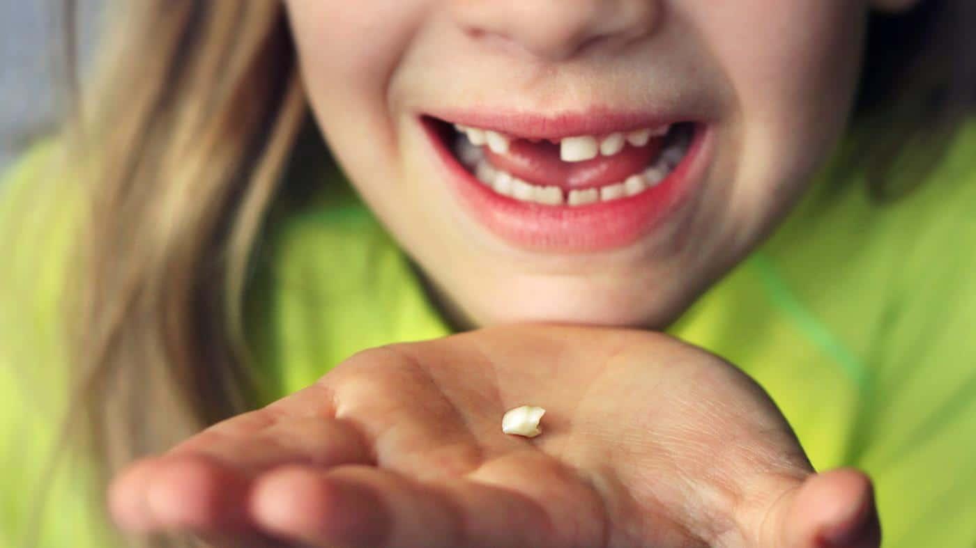 Выпали нижние зубы