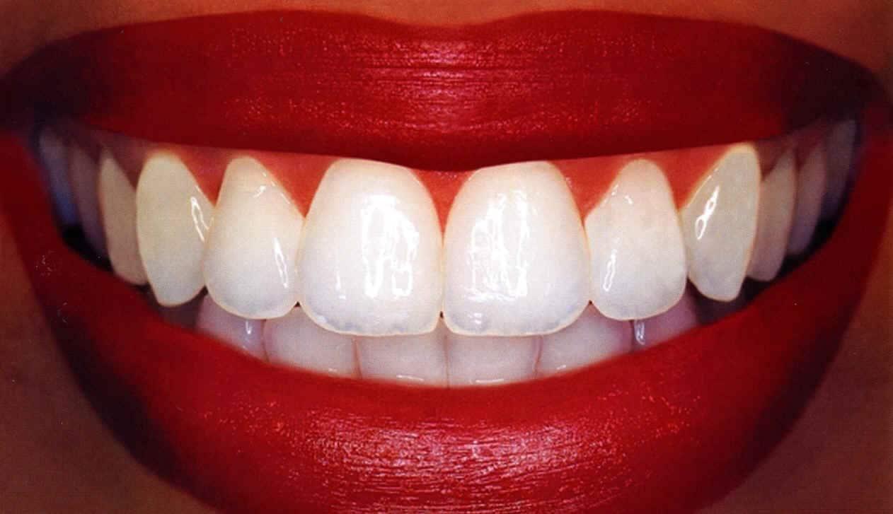 Вытащить зуб
