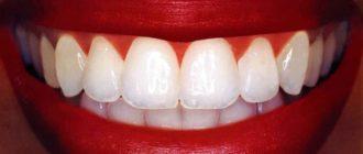 вырос зуб
