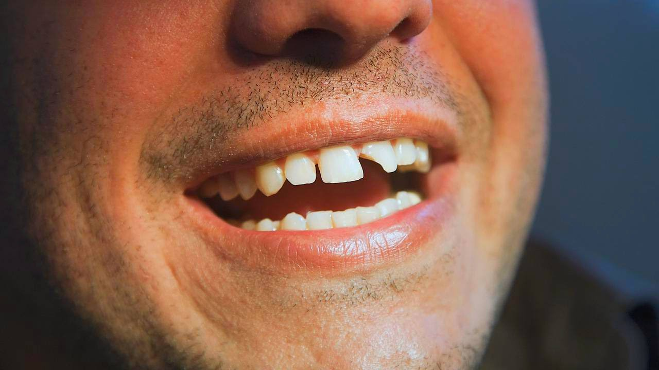 чужие зубы